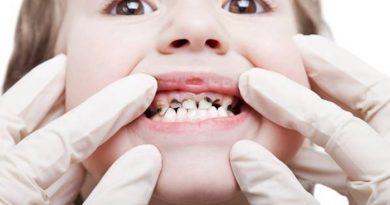 Tim hiểu kháng sinh răng cho trẻ em và mẹo chữ sâu răng cực nhanh